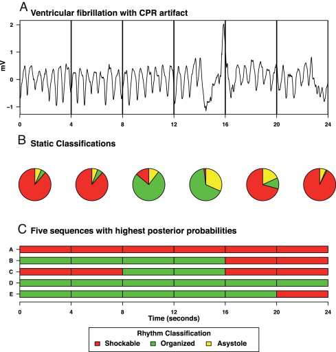 Adaptive rhythm sequencing a method for dynamic rhythm for Rhythm by transition